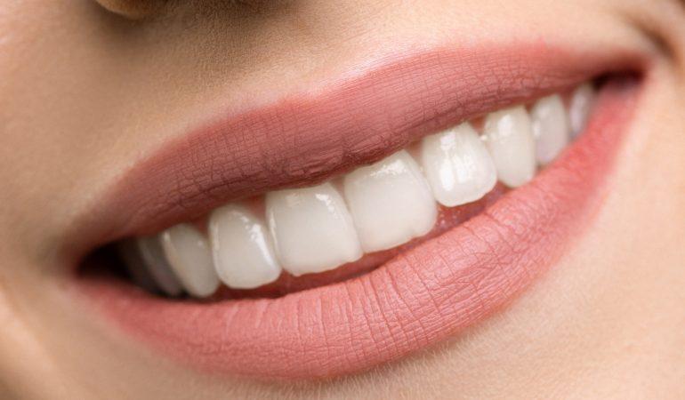 tandenpoetsen, jouw mondgezondheid